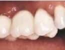 Tandkroner og broer