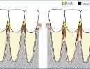 Tandkødsbetændelse og parodontose